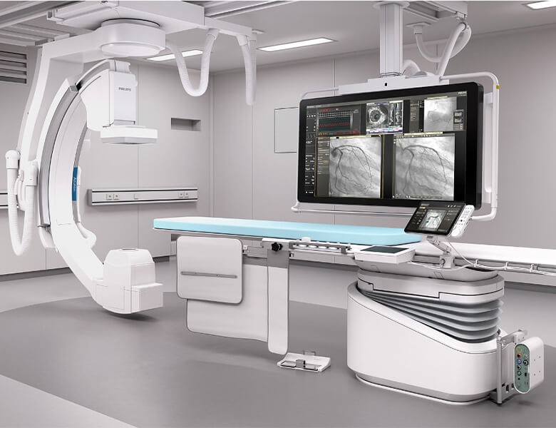 آنژیوگرافی